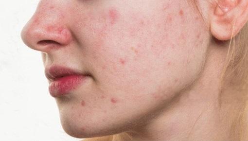 acne-treatment-fixed