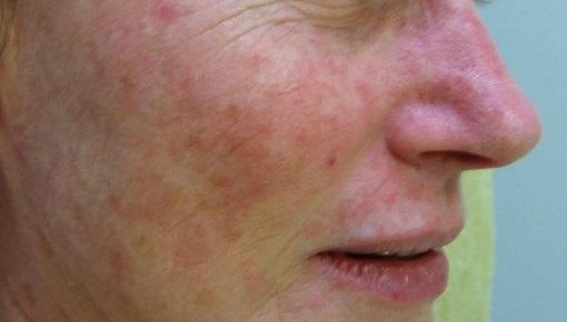 skin pigmentation-fixed
